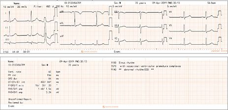12-lead ECG (3 traces × 4 groups) with analysis results