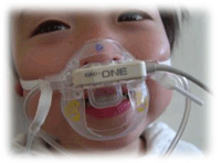 cap-ONE mask - Ensure quality of care under sedation